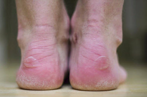 How to treat an intact blister: Your main aim is to protect the blister roof. As long as is intact, it can't get infected.