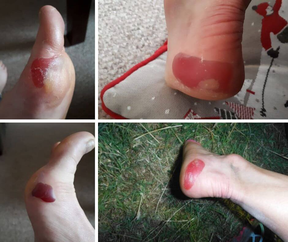 edge blisters heel and forefoot