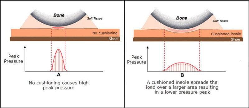 Cushioning reduces peak pressure - Image credit www.oandp.org