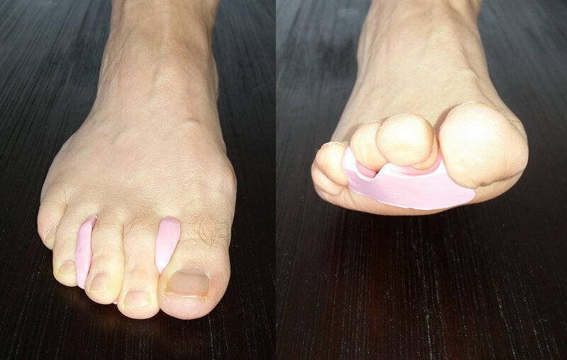 custom made toeprop to stop blisters top of toes