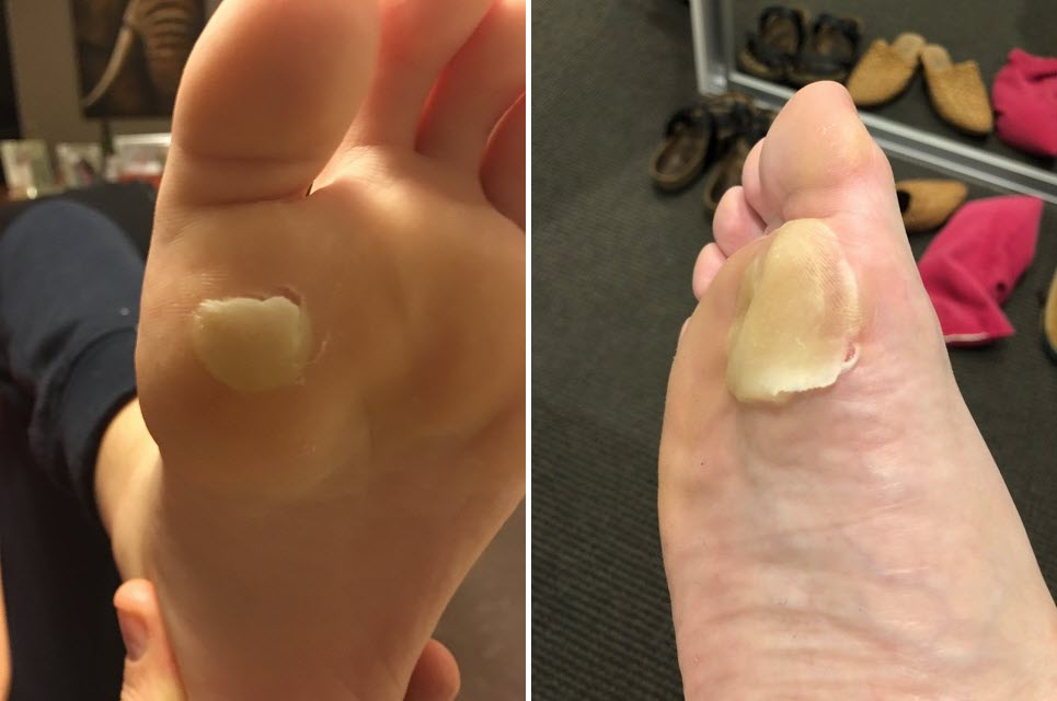 plantar first met head blisters