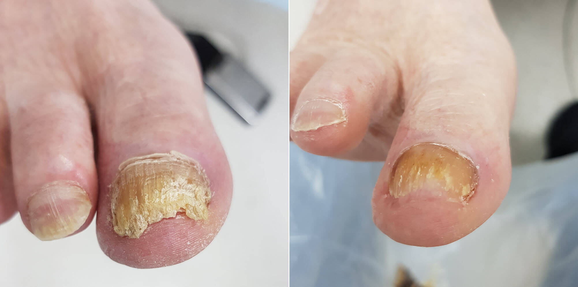 Thick fungal toenail before and after podiatry treatment