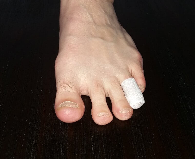 tape to prevent blisters on top of toes