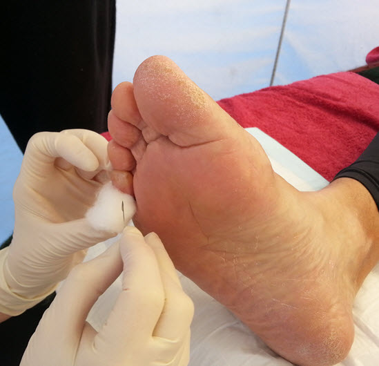 Lancing a blister with a scalpel blade is painless!