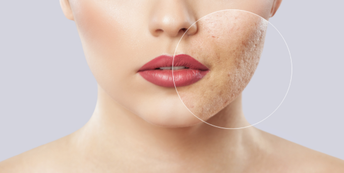 5 ingredients for an effective acne scar treatment