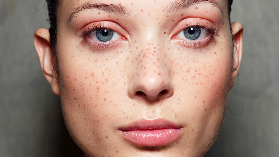 Why Your Dermatologist Wants You To Use Vitamin C On Your Skin