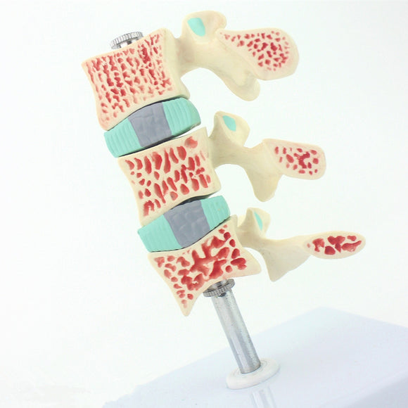 Osteoporosis Model 3 Vertebrae, Detachable Design SJGZSS
