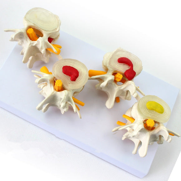 Stages Lumbar Vertebrae Of Disc Prolapse And Vertebral Degeneration Model SJX001