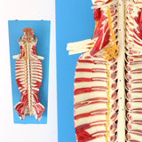Spinal Cord In The Spinal Canal, Central Nervous System Model SJZGS