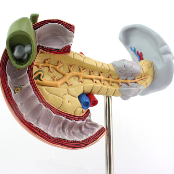 Pancreas Spleen Duodenum Model with Pathologies DJYXBL