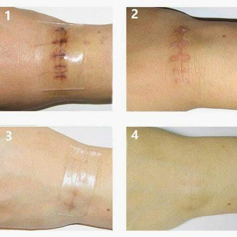 Premium Silicone Scar Removal Patch