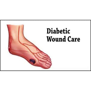 Physiotherapy Treatment: Diabetic Wound (Laser Therapy) - Asian Integrated Medical Sdn Bhd (ielder.asia)