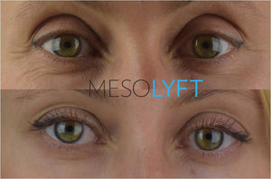 MesoLyft- Eye (NON-REFUNDABLE)