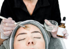 Time-Reversal Chemical Peel Service