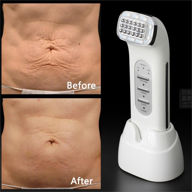 Dot Matrix RF Skin Lifting Wrinkle Removal Facial Beauty Machine - ibeautyneed