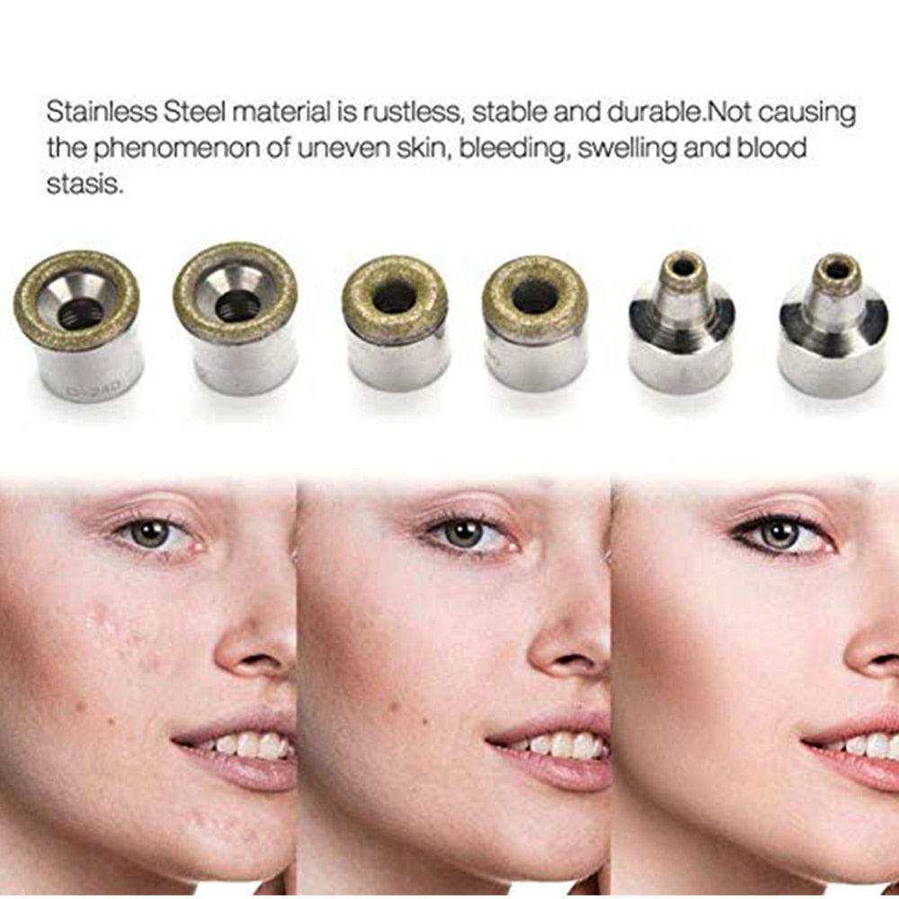 Diamond Microdermabrasion Dermabrasion 3 Wands 9 Tips for Facial Peeling BlackHead Remover Face Care Beauty Machine - ibeautyneed