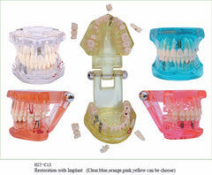 1PC Dental Implant Disease Teeth Model