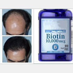 2 Bottles Biotin Adult B7 Vitamin H  Prevent Hair Loss Hair Health 100 pcs  /bottle