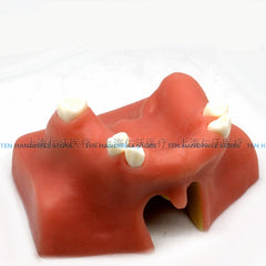 Dental implant training model Maxillary sinus lifting exercises