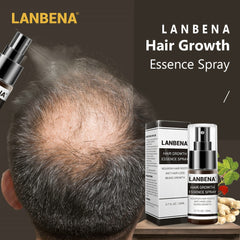 Hair Growth Essence Spray Preventing Baldness