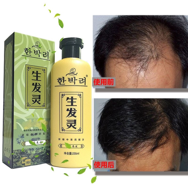 Herbal Medicine Anti Dandruff Itching Shampoo
