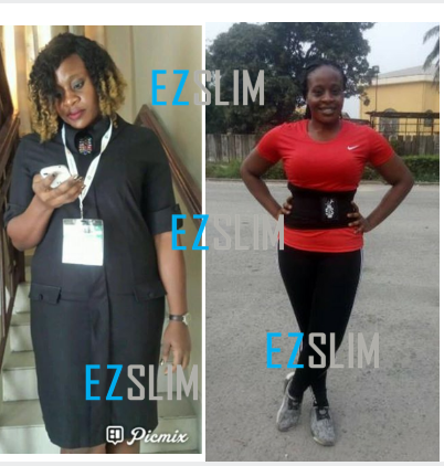 Before and after picture of EZ Slim customer