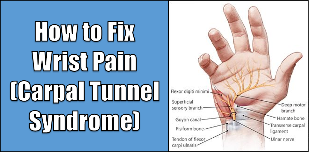 How to Fix Wrist Pain (Carpal Tunnel Syndrome)