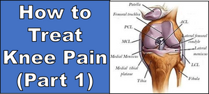 How to Treat Knee Pain (Part 1)