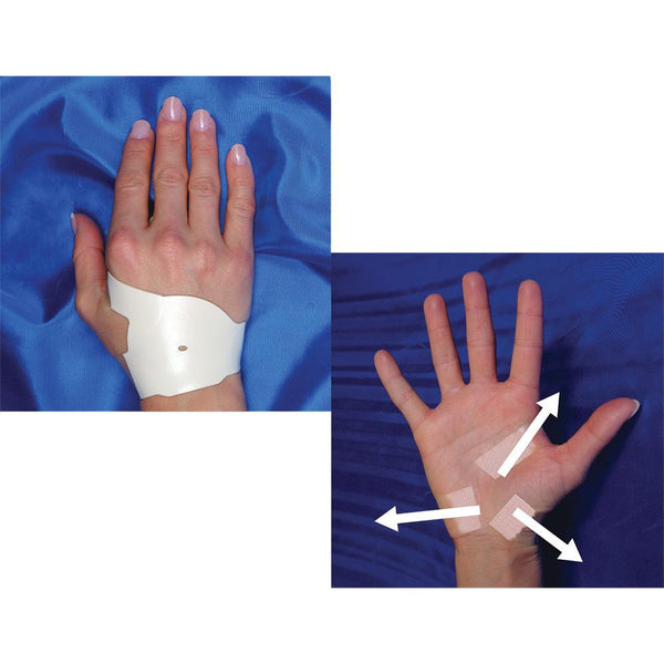 Carpal Tunnel Solution