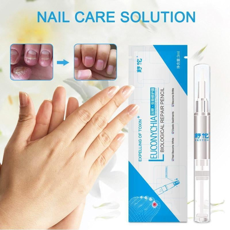 Y&W&F - Nail Fungus Treatment - Naily