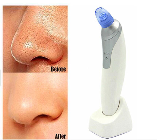 Blackhead Remover Face Cleaning DERMASUCTION VACUUM Machine
