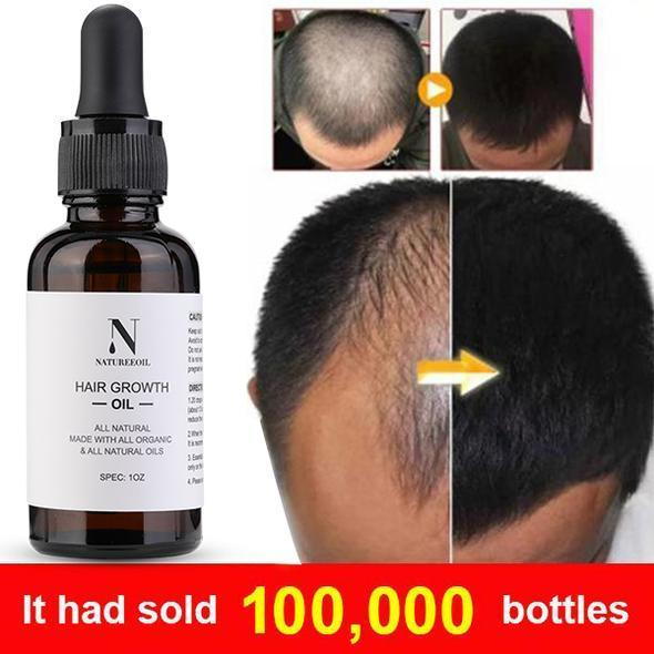 Natureeoil Hair Growth Essential Oil