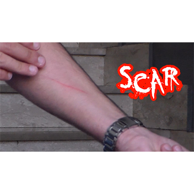 SCAR by Dan Alex - Video DOWNLOAD