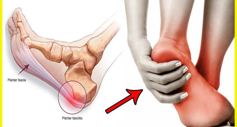 what is Plantar fasciitis, sortedfactory
