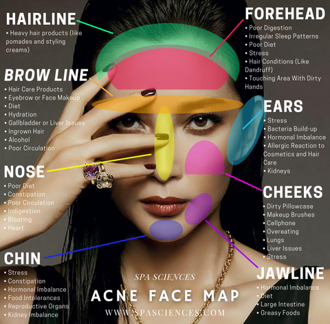In this photo: a visual aid depicting the various regions of the face that acne breakouts can occur and the reasons for breakouts in each of the corresponding regions.