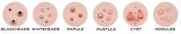 illustration showing the various types of pimples.
