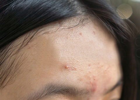 Photograph of a girls forehead with an acne breakout in progress.
