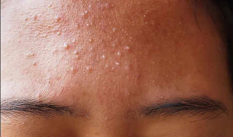 Image displaying the forehead of a woman suffering from a fungal acne outbreak.