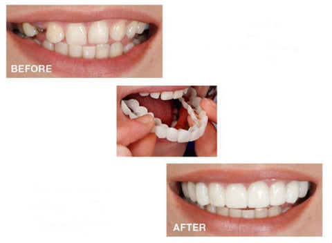 Snap On Smile - Instant Smile Veneer