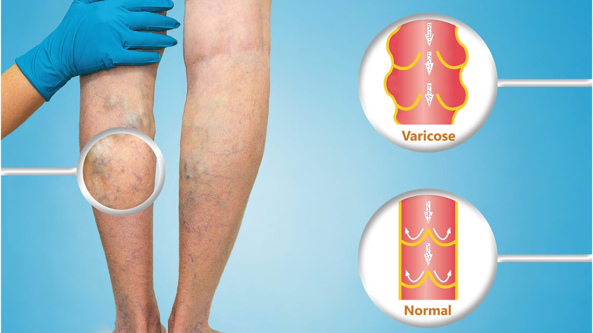 HOW TO PREVENT VARICOSE VEINS?