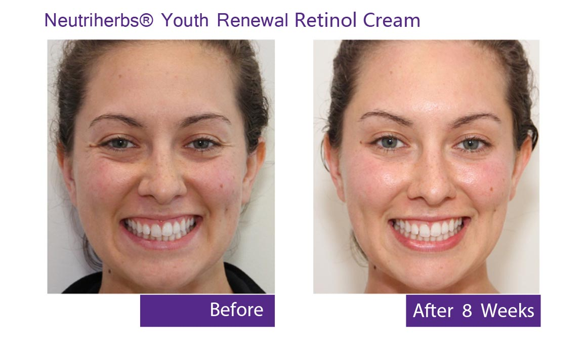 best anti aging moisturizer - retinolcream-before and after