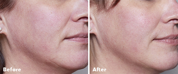 AnteAGE Home Microneedling Before & After