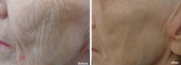 AnteAGE MD® Microneedling Results