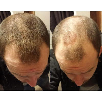 Anti Hair Loss Fibers