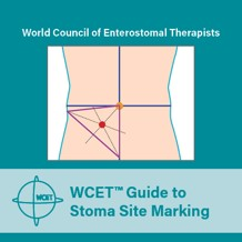 Stoma Marking Pocket Guide