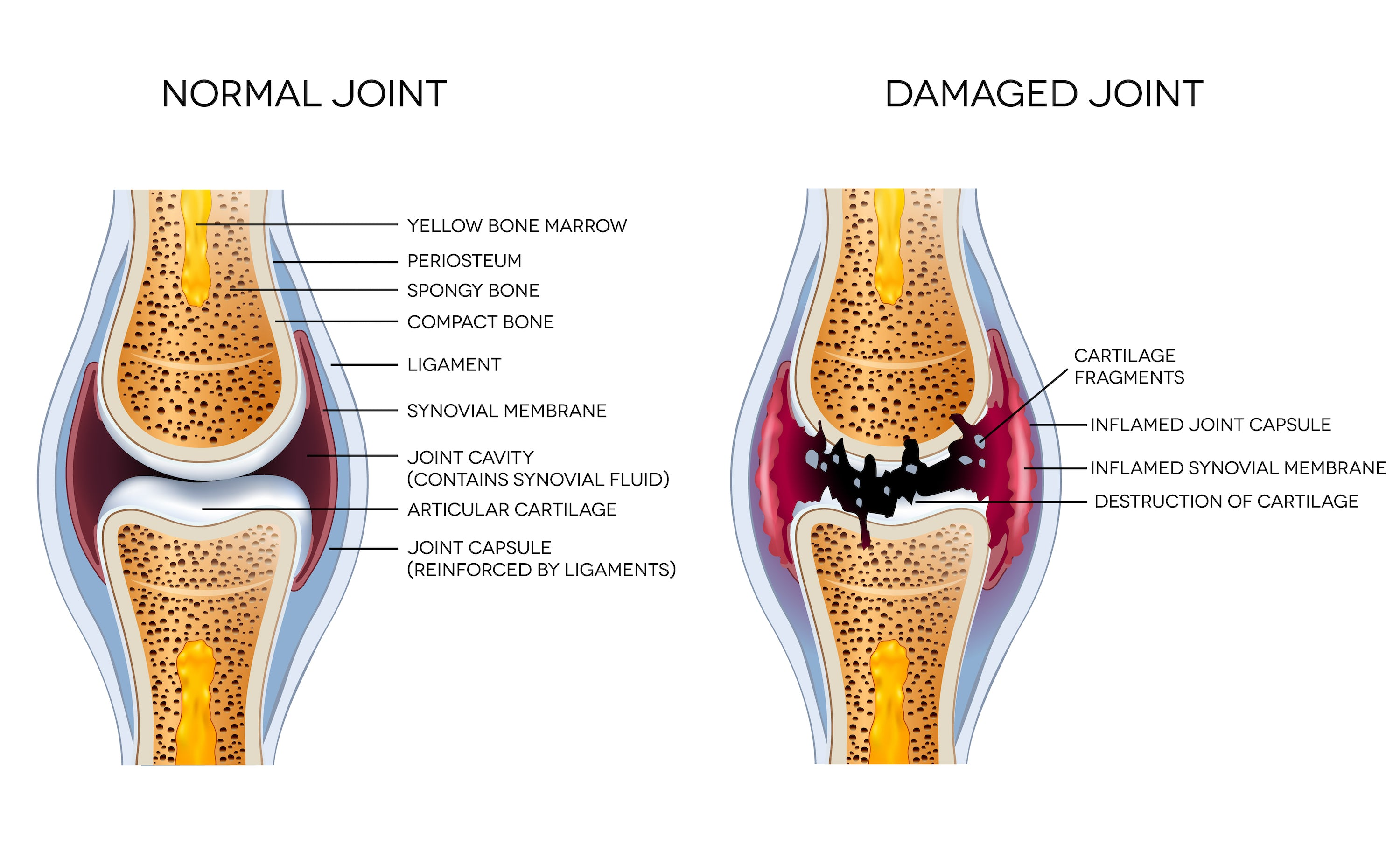 normal joint vs damaged joint comparison