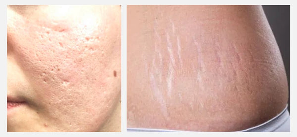 Scars Formation and Treatment: Simple Things at home till laser procedures at dermatology clinics