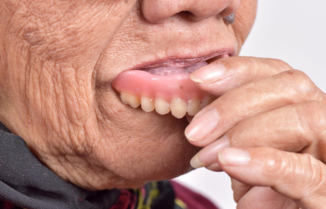 Oral Health: Caring for Natural Teeth and Dentures