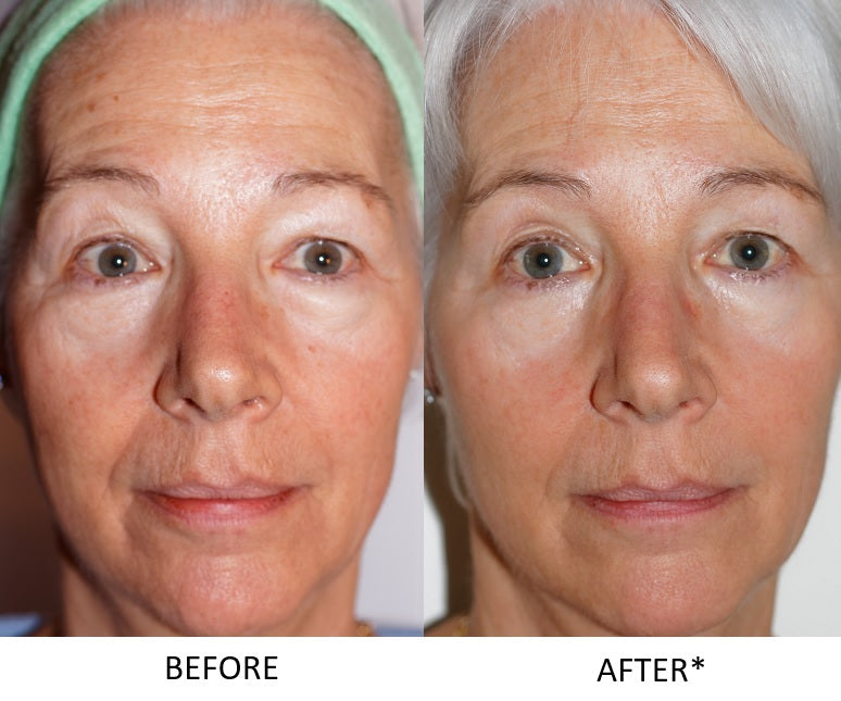 after and before picture for Doctors Formula Anti Ageing Night Moisturiser 50ml