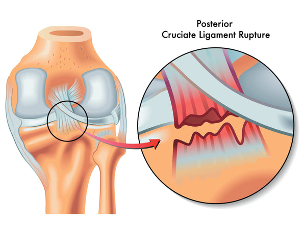 Dashboard Knee Injury PCL Tear Causes Symptoms Healing Time